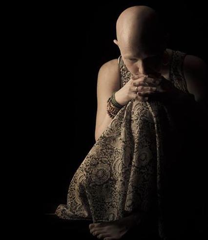 alopecia, bald