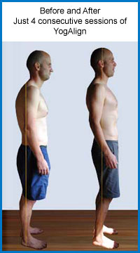 YogAlign before and after photo
