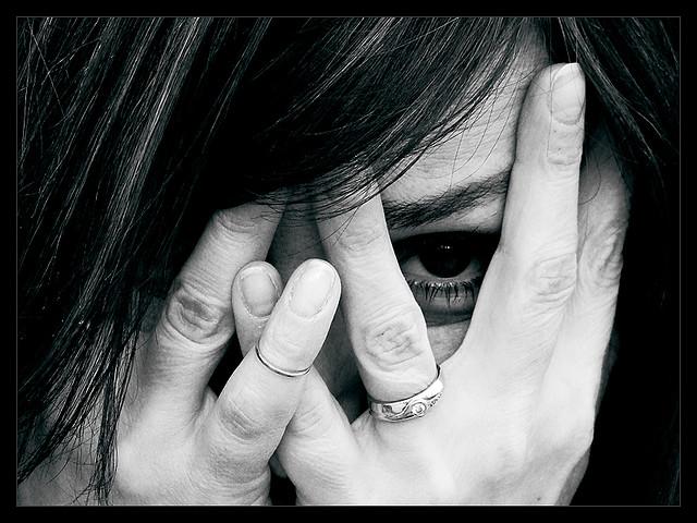acne face hiding shy