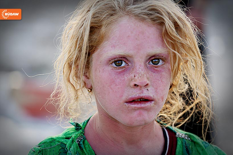 sunburned iraq yazidi