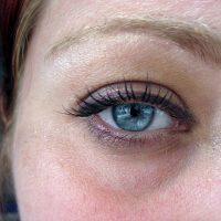 Ayurveda: How to Erase Dark Eye Circles.