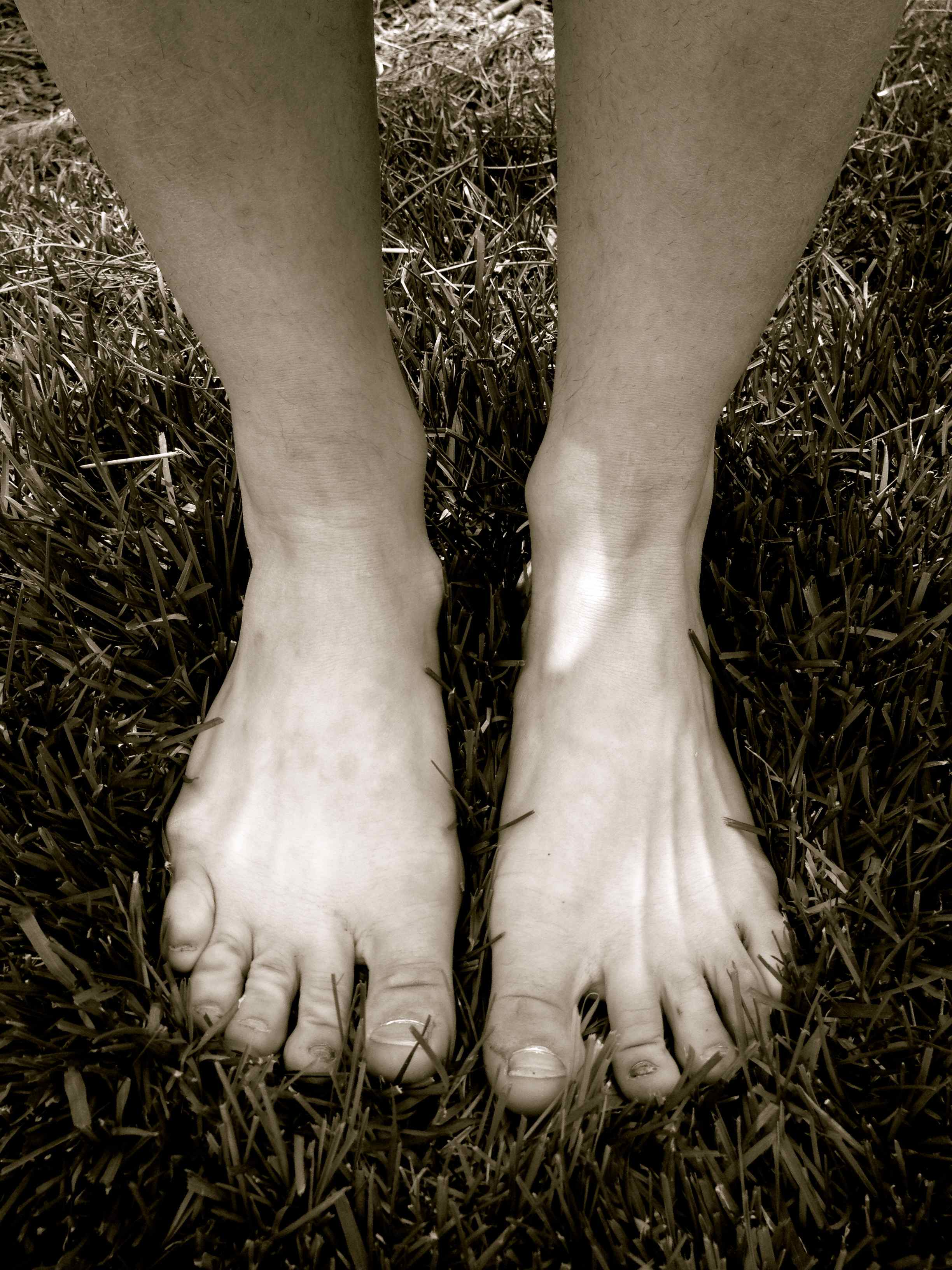 At 24, I have the bunions of a 60 year old. Surgery is