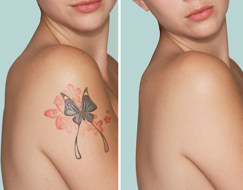 natural tattoo removal