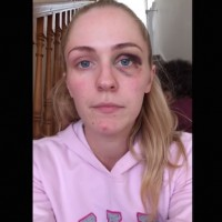 """26 year old woman from Ireland posts video about domestic abuse."""