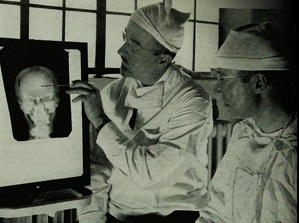 lobotomy brain thinking personality doctor vintage