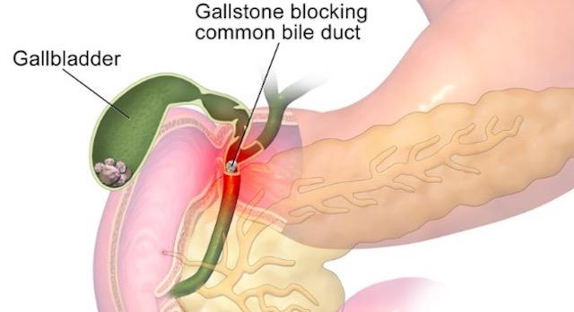 gallstones-1