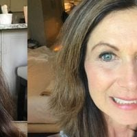 My Face after Cancer---How I'm Learning to Let Go of my Reflection.