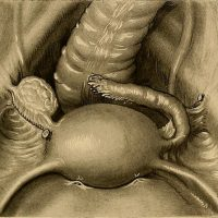 For my 35th Birthday, I got myself a Hysterectomy.